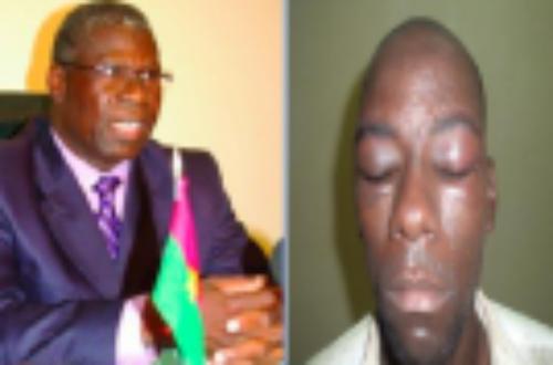 Article : « Affaire Adama Kima » : Après le limogeage du ministre, place à la justice