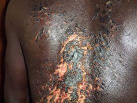 Image d'une personne victime des tortures des Koglwéogo (ph. Saidou Bagaré Diallo)